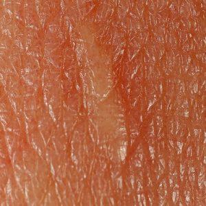 Health: Dermatology